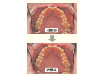 どうやって歯が動くの?